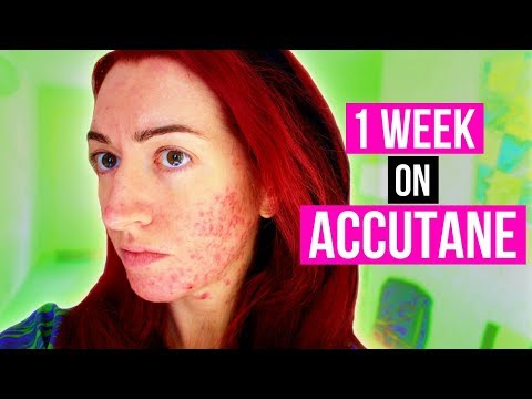 1 WEEK DOWN! MY ACCUTANE/ACNE UPDATE + MENTAL HEALTH CHAT! Jess Bunty Acne Vlog 2 - 동영상