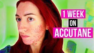 1 WEEK DOWN! MY ACCUTANE/ACNE UPDATE + MENTAL HEALTH CHAT! Jess Bunty Acne Vlog 2