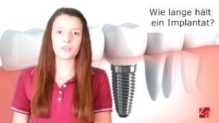 Implantate FAQ  (Teil 04) Wie lange hält ein Zahnimplantat?  Muss es irgendwann erneuert werden?