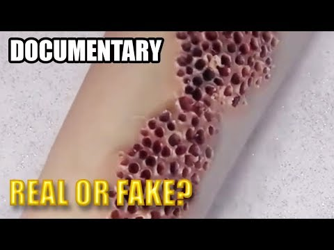 Trypophobia Real Or Fake Fear Of Holes And Spots Youtube
