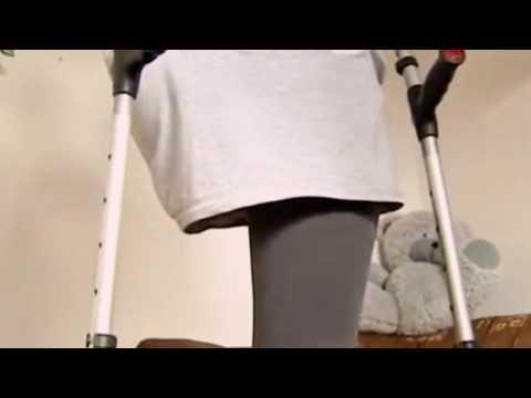 Amputee girl beautiful leg