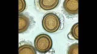 eliminare paraziti intestinali