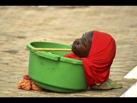 La joven que nació sin cuerpo y vive en un balde