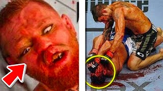 TOP 10 WORST MMA INJURIES OF ALL TIME