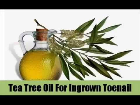 Tea  Tree  Oil  Toenail  Fungus – SEE IT !