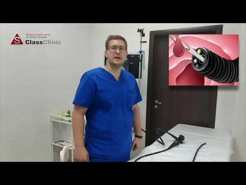 Эндоскопия - что это?
