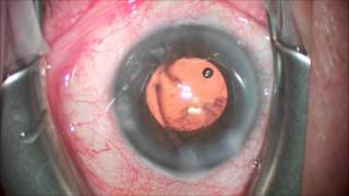 Pearl: Sub-incisional cortex, easy removal after IOL implantation. Cataract Surgery
