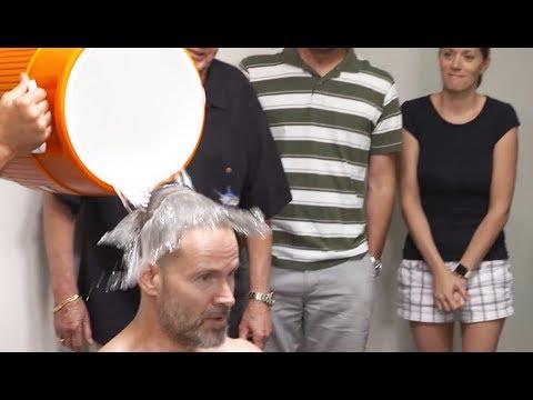 Hair Fibers vs DermMatch: Hair loss concealer live comparison.