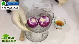 YOU WILL BE THE KING AFTER USING ONION JUICE , IT'S BENEFITS