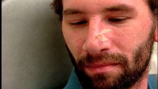 Extreme Makeover | Dr. Garth Fisher Performs a Rhinoplasty and Brow Lift on Nate