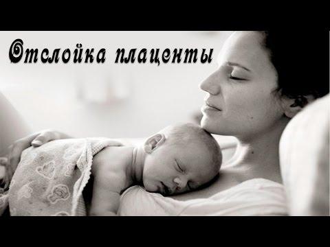 Отслойка плаценты. Плацента при беременности.Дети, выживание вида.21 серия