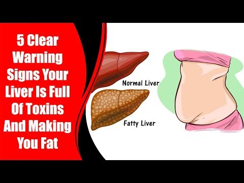 5 Clear Warning Signs Your Liver Is Full Of Toxins And Making You Fat | Love Healthy Life