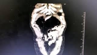 aneurisma aorta abdominal.