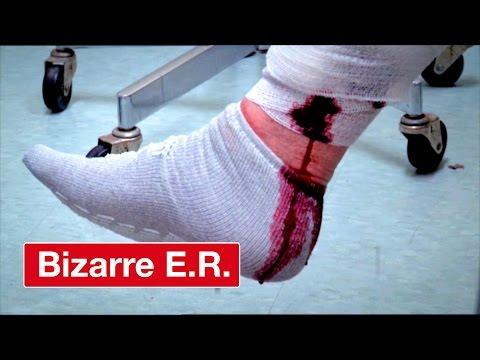 Varicose Vein Wont Stop Bleeding - Bizarre ER