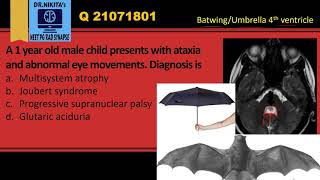 Joubert syndrome- Synopsis