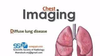 Imaging of Diffuse lung diseases - Prof Dr. Mamdouh Mahfouz (In Arabic)