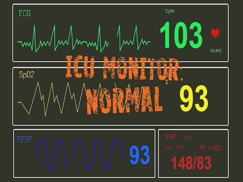 ICU Monitor: Normal
