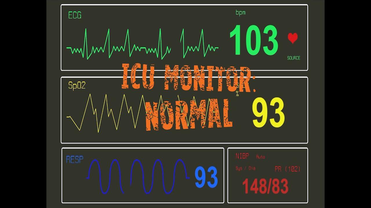 ICU Monitor: Normal