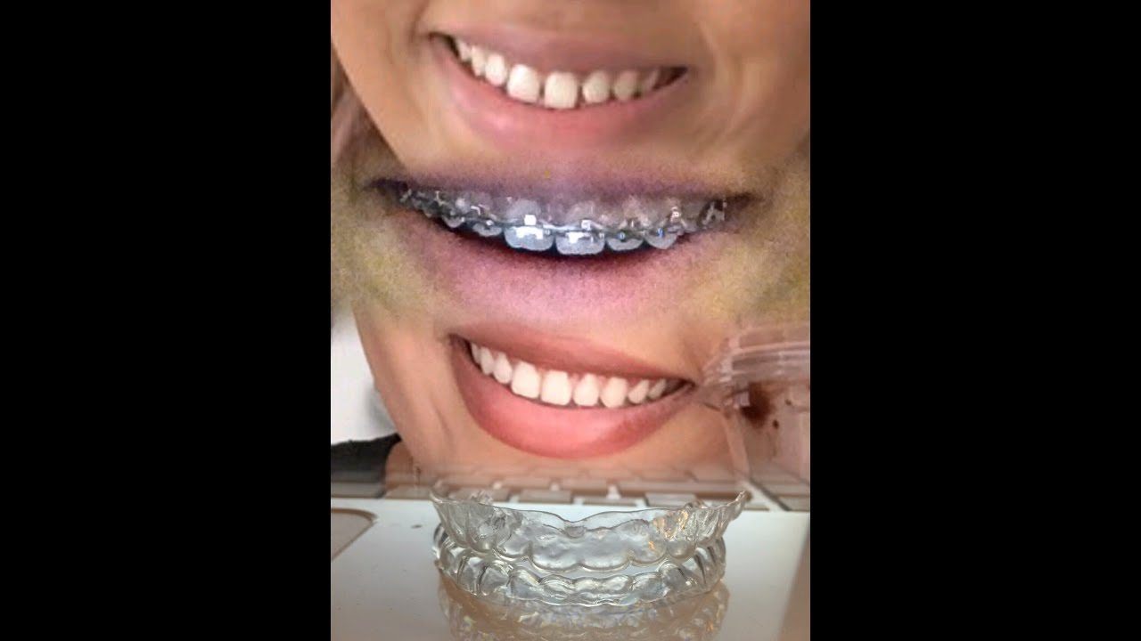 Post Brace update, clear retainers before and after pics ...