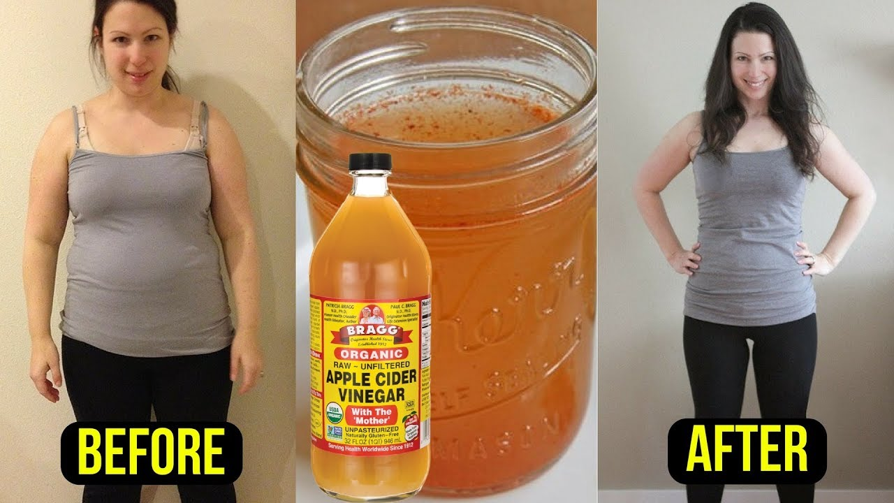 Take 1 Tablespoon of Apple Cider Vinegar & Burn Belly Fat