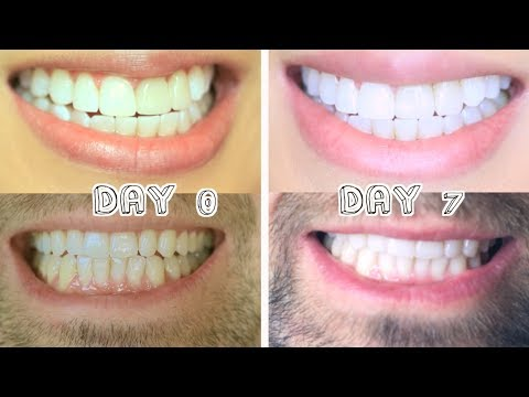 Best Teeth Whitening for Stains & Dental Work