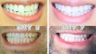Best Teeth Whitening for Stains & Dental Work