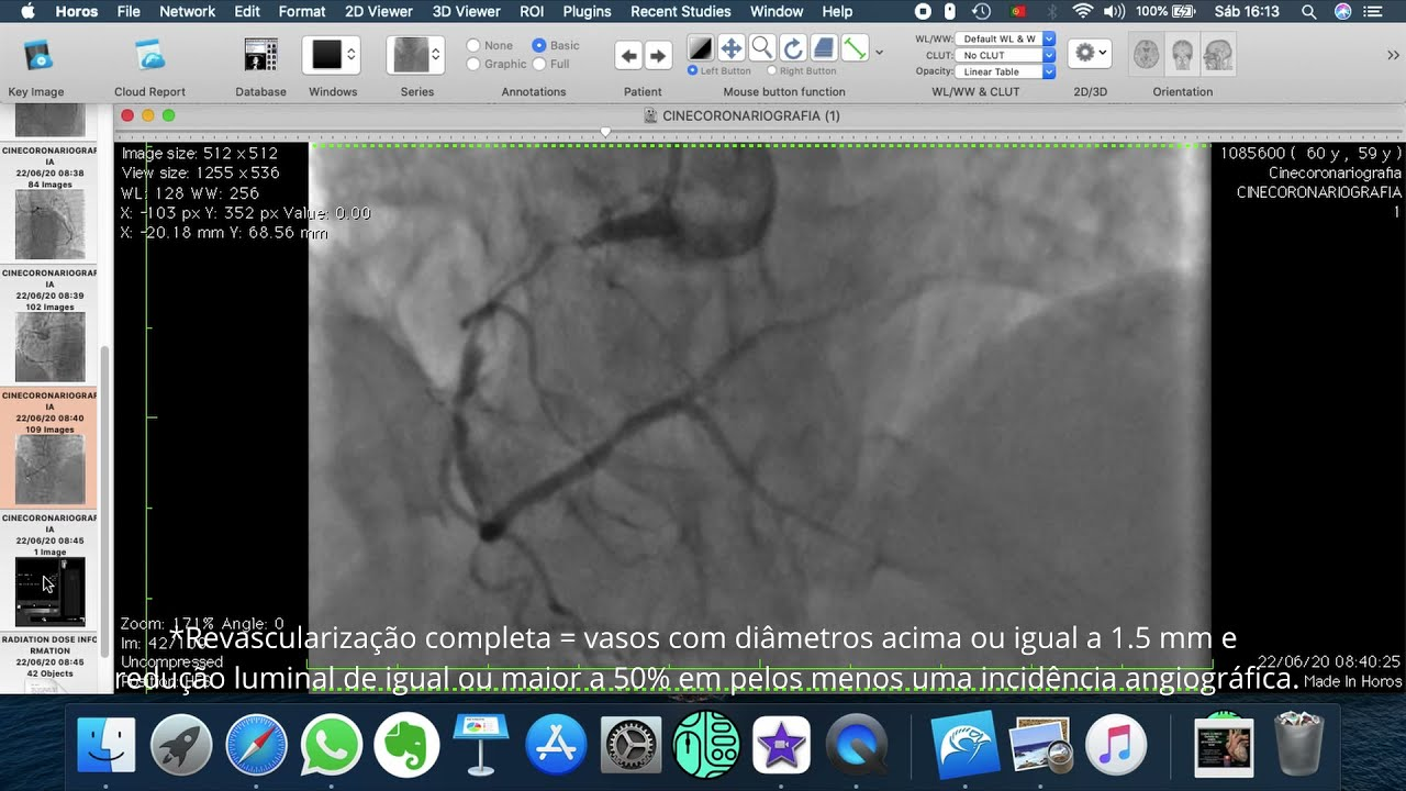 Screencast de caso: analisando o cateterismo antes da Revascularização do miocárdio.