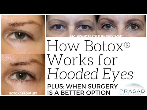 How Botox can Help With Slightly Hooded Eyes, and When Eyelid Surgery is More Appropriate