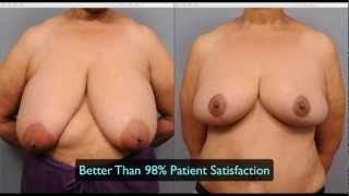 Repeat youtube video Breast Reduction Technique | Dr. Sterry