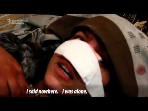 Afghan Woman's Husband Cuts Off Her Nose