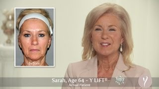 Y LIFT ® 2013 - Sarah | Instant, Non Surgical Facelift