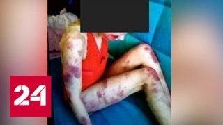 Ревнивец забил жену до смерти, а фото выложил в Интернет - Россия 24