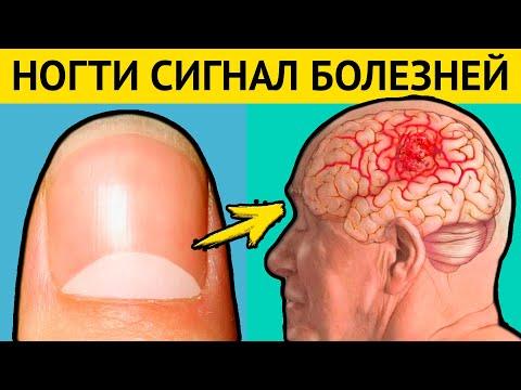 НОГТИ - предвестники СТРАШНЫХ БОЛЕЗНЕЙ. Диагностика болезней по ногтям