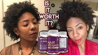 Do Hair Vitamins Work?! (3 Month Trial)   Simplistic Hair Vitamin Gummies