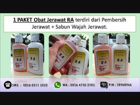 HP 0857 1238 3596 Obat Jerawat Yang Paling Ampuh, Obat ...