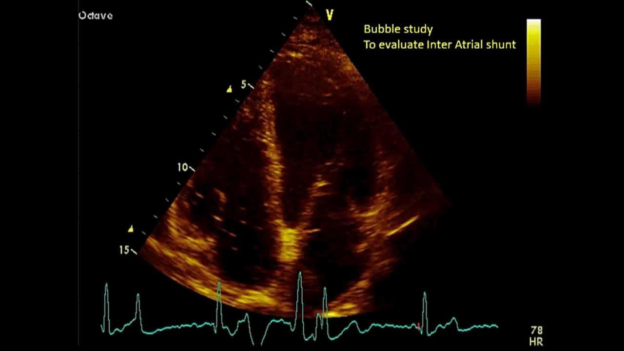 Apical Views Transthoracic Echocardiogram Tte Free