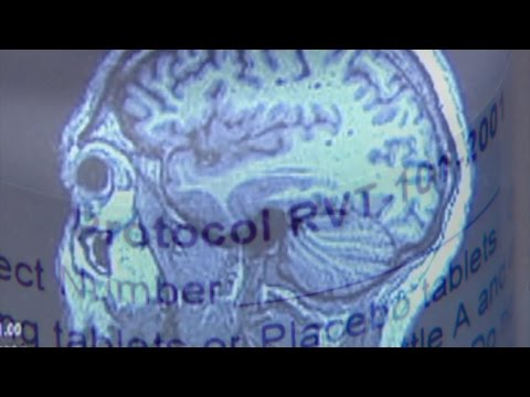 Drug being tested for Lewy body dementia