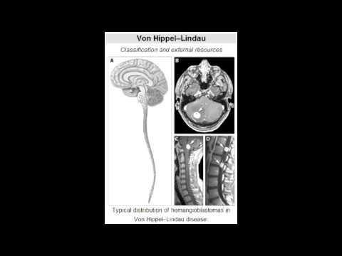 von Hippel-Lindau disease (dominant tumor suppressor gene mutation)