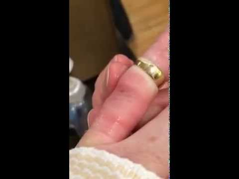 Getting A Ring Off Swollen Finger