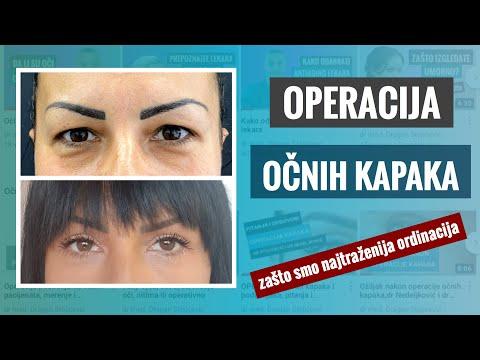 Operacija Očnih Kapaka, Višak Kože Kapaka, Kapci Koji Vise, Podočnjaci, Kesice I Nadutost Gornjih I