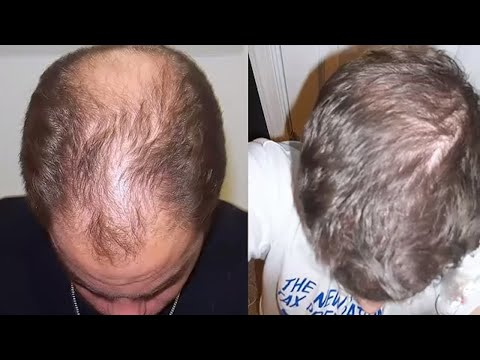 All Doctors are shocked by this Incredible Hair Growth Recipe !!