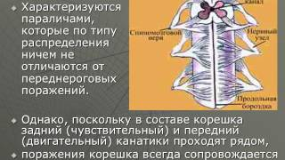 видео Признаки периферического паралича (пареза). Мышечная гипотония при периферическом параличе