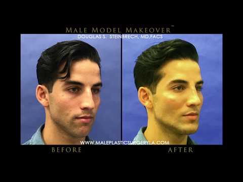 LA Male Model Makeover With Facial Filler By Dr. Steinbrech #7