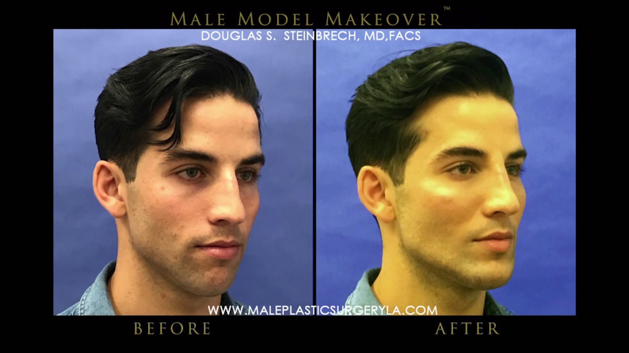 Get Male Model Plastic Surgery In NYC