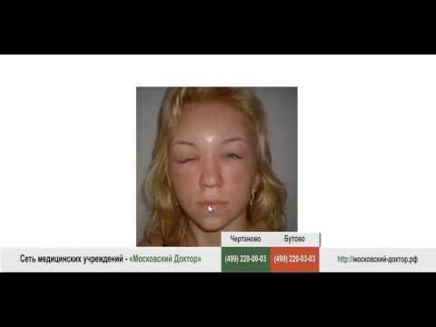 Как быстро снять аллергический отек с лица