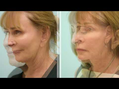Dallas Facelift Before and After