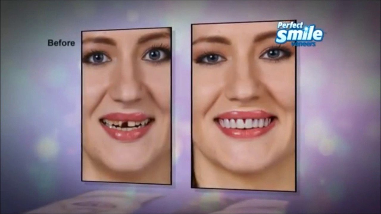 perfect smile veneers верхние и нижние
