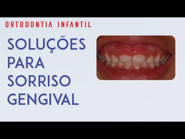 Dra Paulene Cardoso - Pista plana + Oclus o guide para sorriso gengival