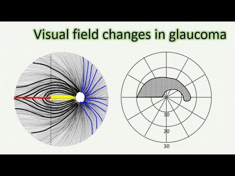 Glaucoma 1 | Visual field changes in glaucoma