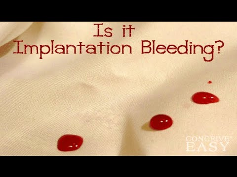 Symptoms of Implantation Bleeding